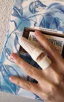 Orthese-digitale-thermoformee-sur-mesure