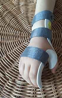 Orthese-thermoformee-sur-mesure-de-poignet-main-doigts